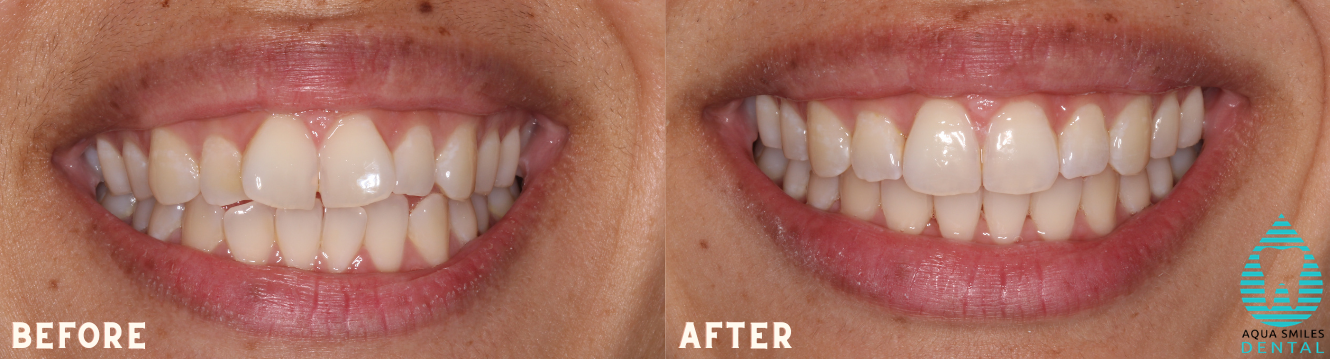 Invisalign Hoppers Crossing before and after