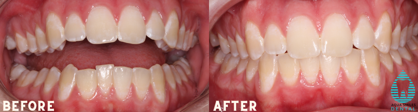 Invisalign Werribee before and after