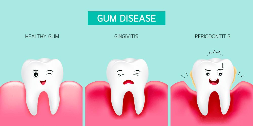Gum Disease Hoppers Crossing