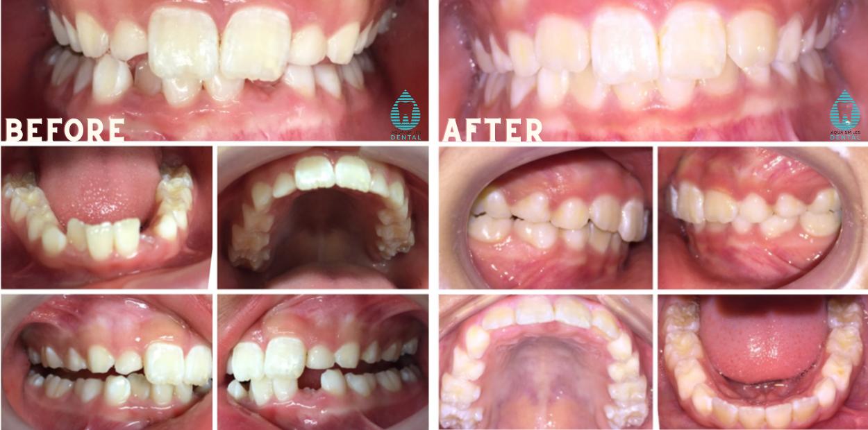Children's Orthodontics 2