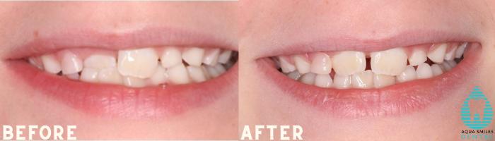 Children's Orthodontics 3